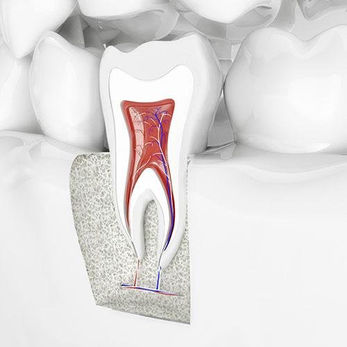 Endodontie (Wurzelkanalbehandlung) Dentilus