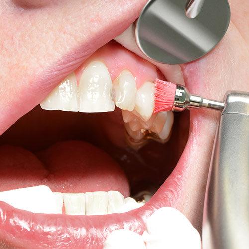 Parodontologie Dentilus