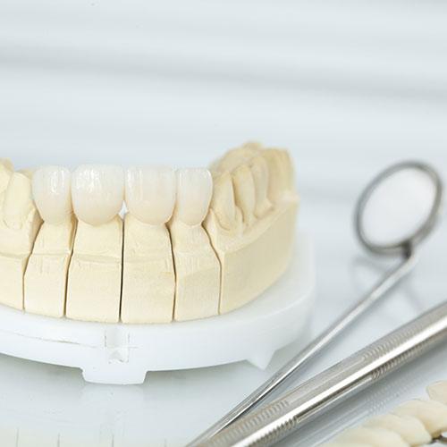 Prothetik Zahnersatz Dentilus