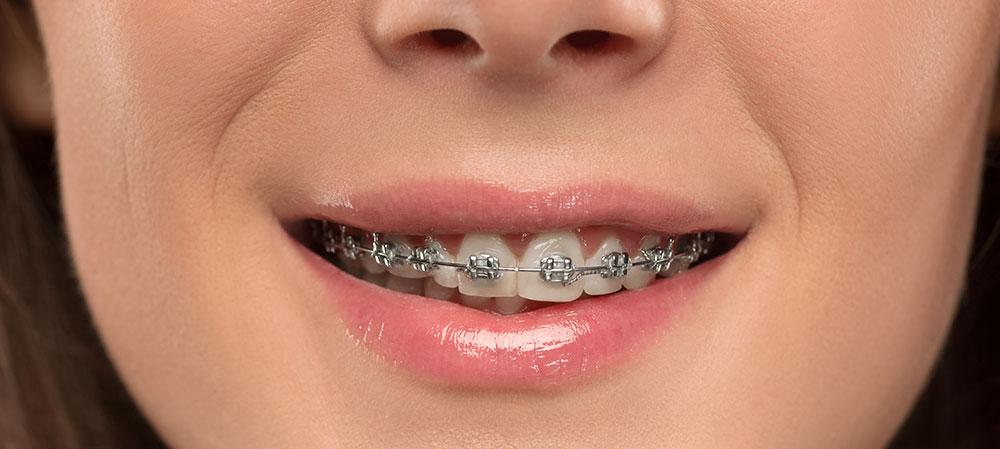 Gerade Zähne ohne Zahnspange? Dentilus